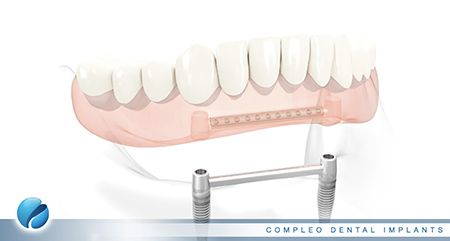 Dental Implant Supported Dentures