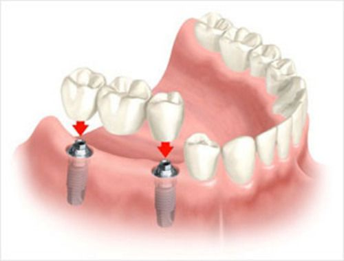 Dental Implant-Supported Bridges