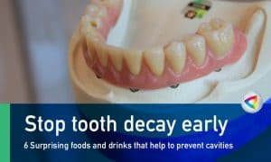 6 Surprising Foods And Drinks That Help To Prevent Cavities